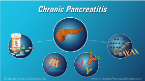 Animation - Chronic Pancreatitis