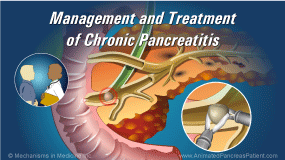 Animation - Management and Treatment of Chronic Pancreatitis