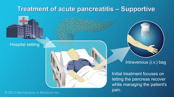 management and treatment of acute pancreatitis, Human Body