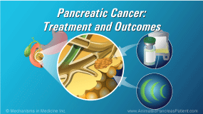 Animation - Pancreatic Cancer - Treatment and Outcomes