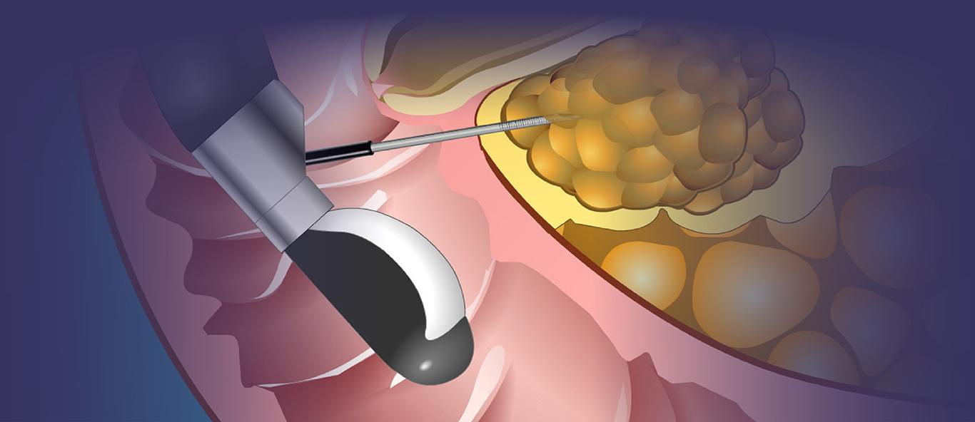 Animated Pancreas Patient