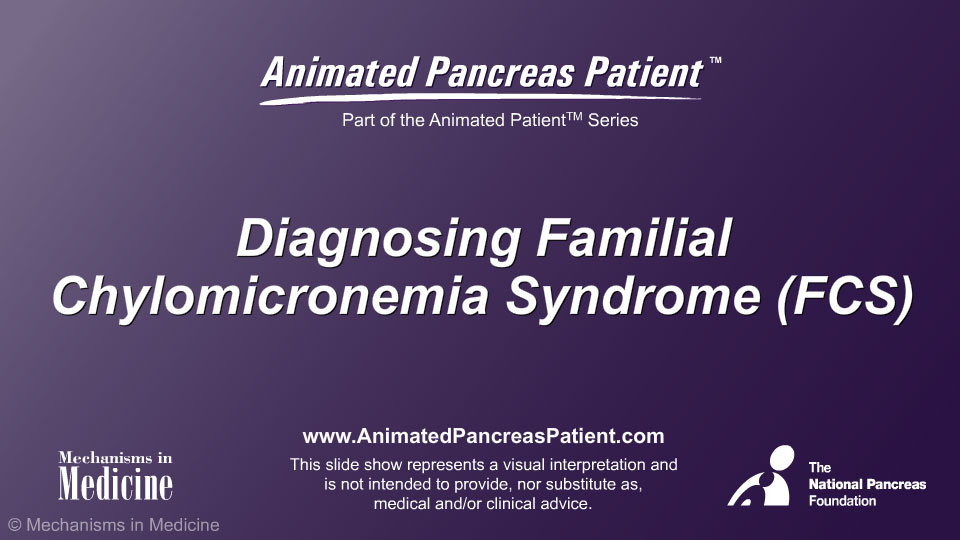 Diagnosing Familial Chylomicronemia Syndrome (FCS)