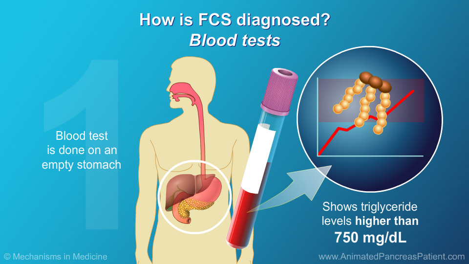 How is FCS diagnosed?