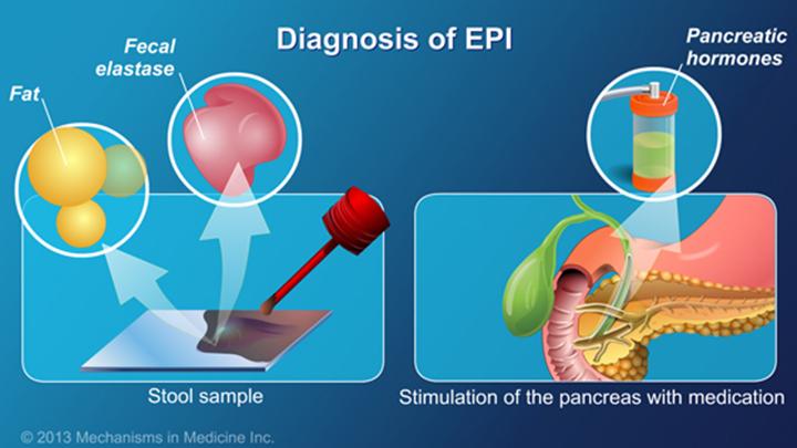 Exocrine Pancreatic Insufficiency (EPI)