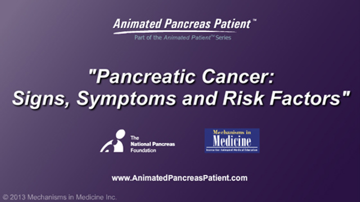 Pancreatic Cancer - Signs, Symptoms and Risk Factors