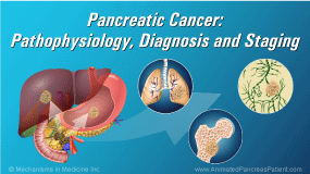 Pancreatic Cancer - Pathophysiology, Diagnosis and Staging